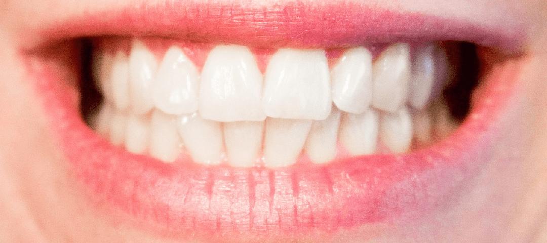 Wybielanie zębów – o czym warto pamiętać?
