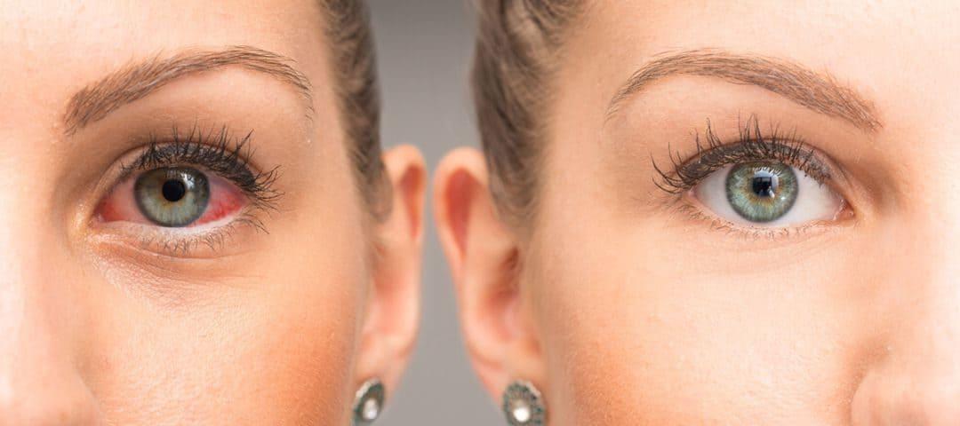 Jakie są przyczyny pękania naczynek w oku?