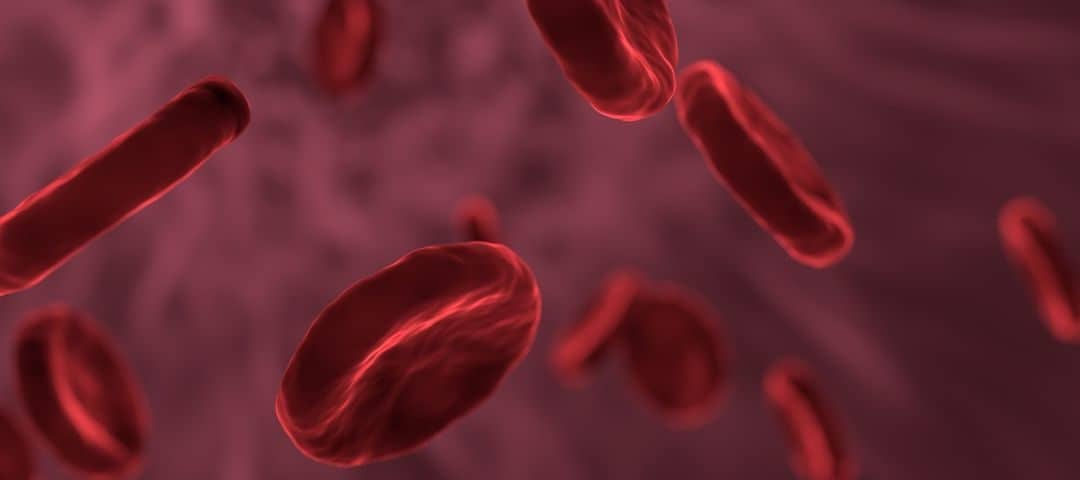 Anemia – rodzaje, przyczyny, objawy, leczenie