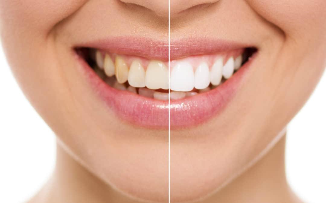 Co powinieneś wiedzieć o wybielaniu zębów?