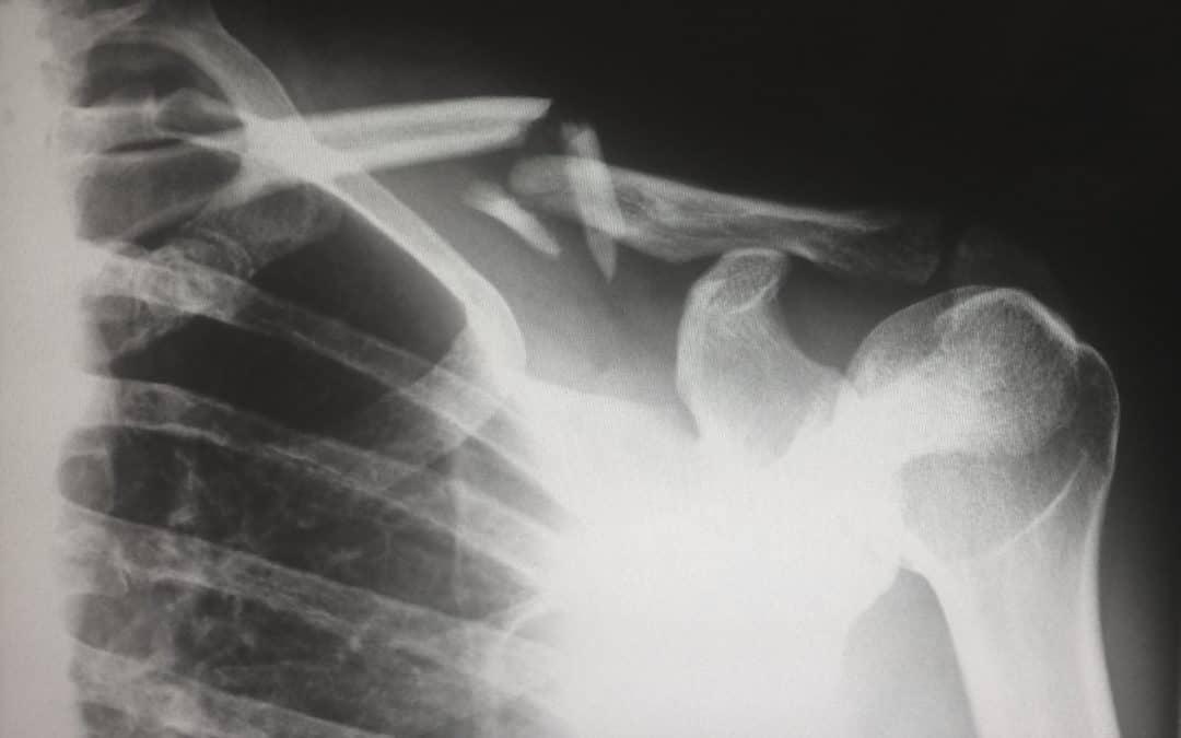 Zespół Sjogrena – leczenie naturalne choroby