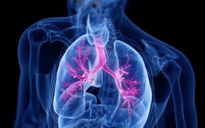 Zapalenie oskrzeli – przyczyny, diagnostyka, leczenie
