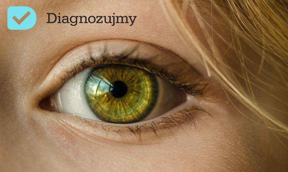 Zapalenie spojówek – dbanie o oczy
