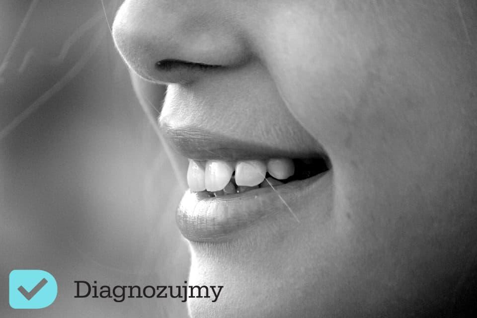 Opryszczka – przyczyny, leczenie – dowiedz się, jak domowymi sposobami szybko pozbyć się opryszczki!