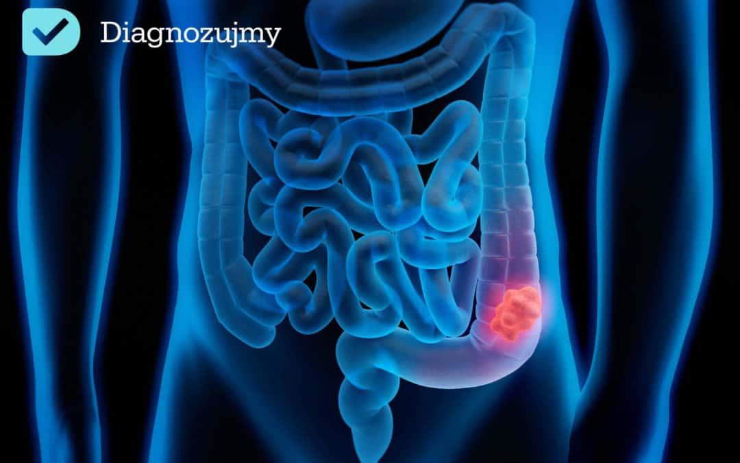 Niezwykła moc bakterii jelitowych – wymiana bakterii jelitowych i transplantacja mikrobiomu leczy nieswoiste zapalenia jelit!